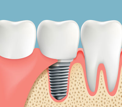 Tooth Implants in Federal Way, WA
