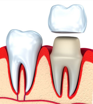 Dental Crowns Federal Way and Greater Seattle