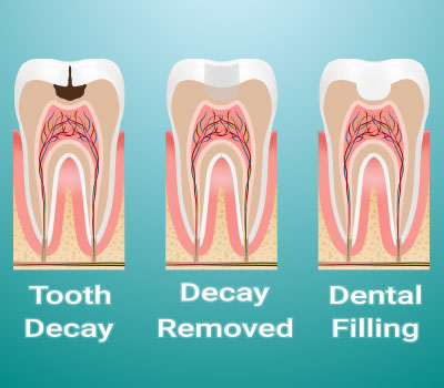 Dental Fillings in Federal Way, WA