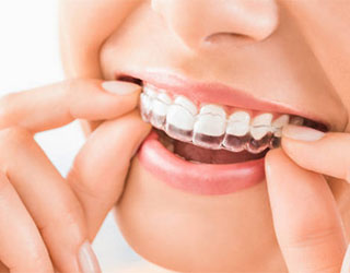 Invisalign Clear Braces in Federal Way, WA