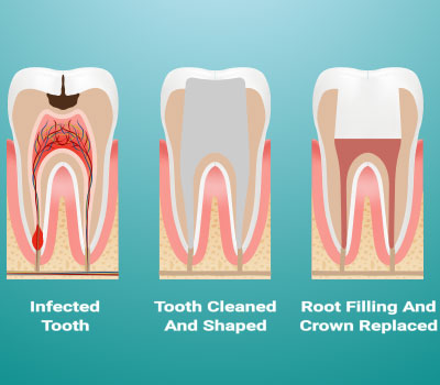 Root Canal Treatment Federal Way, WA
